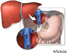 Ilustración de trasplante del hígado
