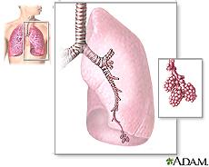 Ilustración de las principales estructuras de los pulmones que incluyen los bronquios, los bronquiolos y los alvéolos