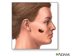 Illustration of a malignant melanoma on the cheek