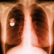 Photograph of an x-ray of the chest showing a pacemaker
