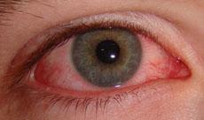 Un ojo con conjuntivitis