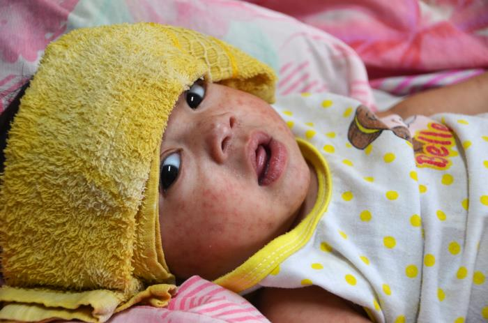 A tiny sick child lies on a bed and has a folded yellow towel wrapped around her head above her eyes.