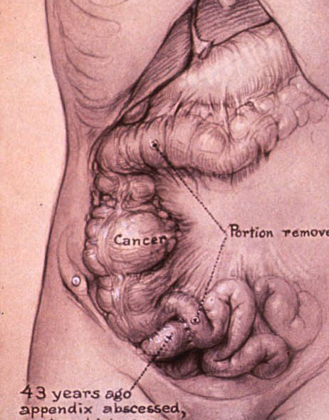 Anatomical illustration showing the appendix