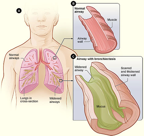 A chart is divided into three sections labeled as A, B, and C. Section A shows lungs superimposed over a human chest and labels the Normal airways, Widened airways and Lungs in cross-section. Section B is an enlarged portion from Section A, showing the Muscle and Airway wall of a Normal airway. Section C is an enlarged portion from Section A, showing a Widened airway filled with Mucus with a Scarred and thickened airway wall of an Airway with bronchiectasis.
