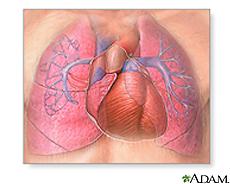 Ilustración demostrando el estrechamiento de las arteriolas pulmonares y el ventrículo derecho agrandado