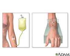 Ilustración de radioterapia intravenosa y por máquina de radiación