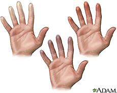 Ilustración de los dedos con características del fenómeno de Raynaud