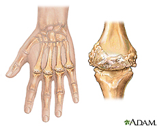 Illustration of rheumatoid arthritis