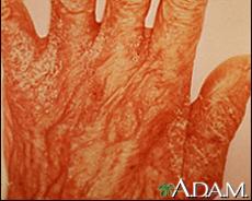 Fotografía de una erupción por sarna en la mano