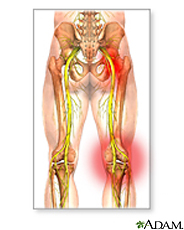 Illustration of sciatic nerve damage