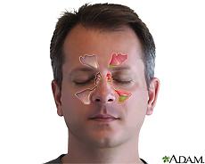 Ilustración de los senos paranasales y la sinusitis