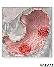 Ilustración de úlceras estomacales