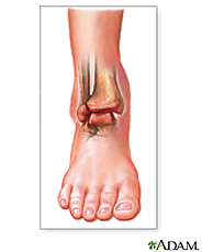 Illustration of a swollen and discolored ankle