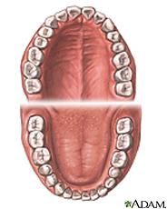 Ilustración de dientes normales