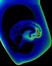 Thermal image of a brain