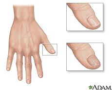 Ilustración de una uña normal del dedo y una uña quebradiza y seca