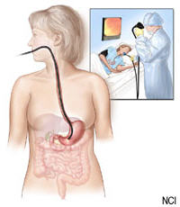 Illustration of an upper endoscopy