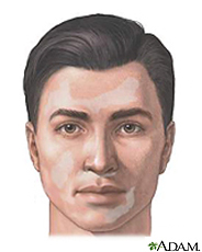 Illustration of man with vitiligo lesions on the face