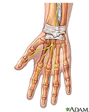 Illustration of the wrist anatomy