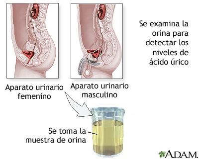 Prueba de ácido úrico