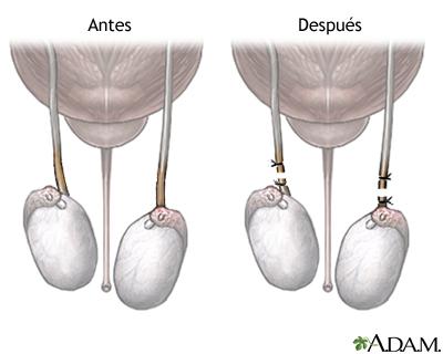 Antes y después de la vasectomía
