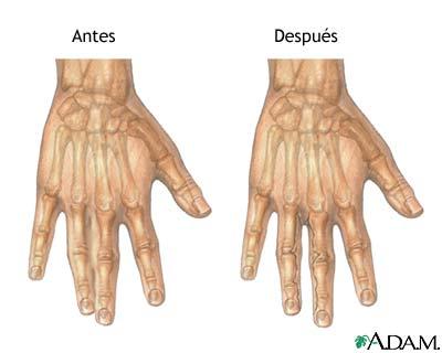 Antes y después de reparación de sindactilia