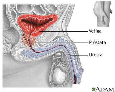 Prostatectomía - Serie—Anatomía normal: MedlinePlus enciclopedia médica