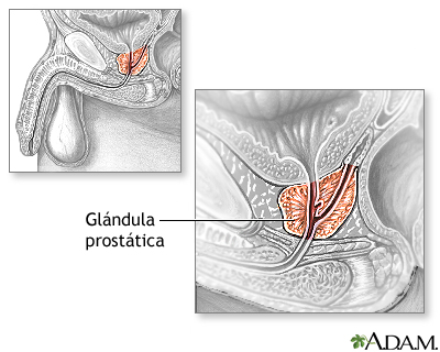 Resección transuretral de la próstata (RTUP) - Serie—Anatomía normal ...