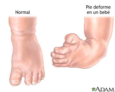 Reparación quirúrgica del pie zambo - Serie—Anatomía normal ...