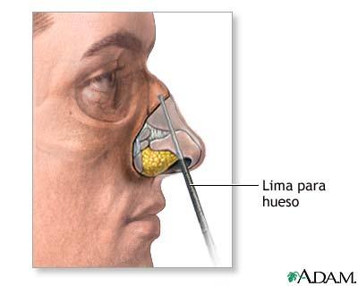 Cirugía plástica de la nariz (rinoplastia) - Serie—Procedimiento ...