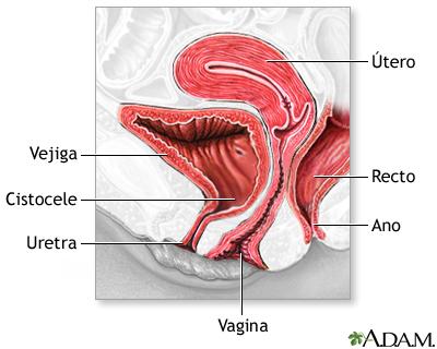 Lugares para perforar la vagina