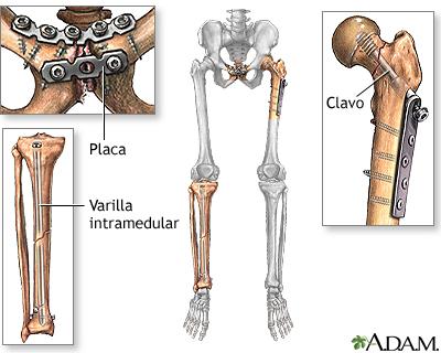 Tratamiento De Fracturas De Huesos Serie Procedimiento