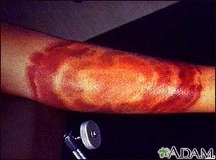 Eritema crónico migratorio en la enfermedad de Lyme
