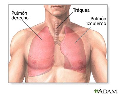 Lobectomía pulmonar - Serie—Anatomía normal: MedlinePlus ...