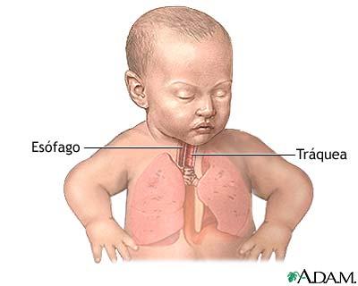 Reparación quirúrgica de una fístula traqueosofágica - Serie ...