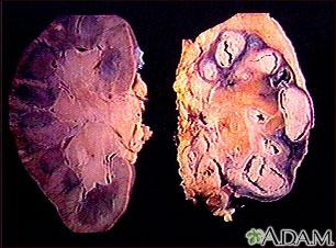 Tuberculosis renal