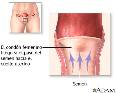revisión córneo oral con condón