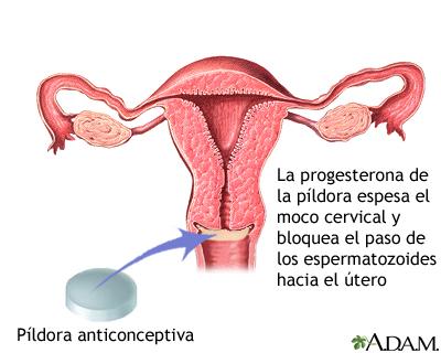 La progesterona en la píldora