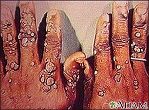 Verrugas múltiples en las manos