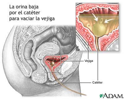 Cateterización de la vejiga en la mujer