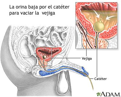 Cateterización de la vejiga en el hombre