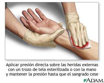 Interrupción del sangrado con presión directa