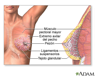 Infección mamaria: MedlinePlus enciclopedia médica