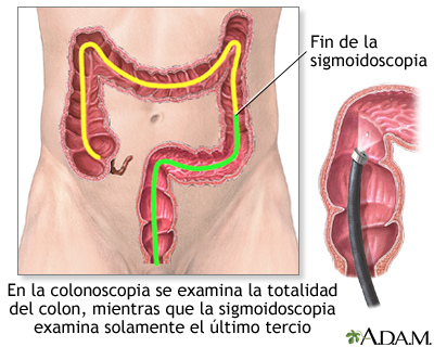 Deteccion Sistematica Del Cancer De Colon Medlineplus