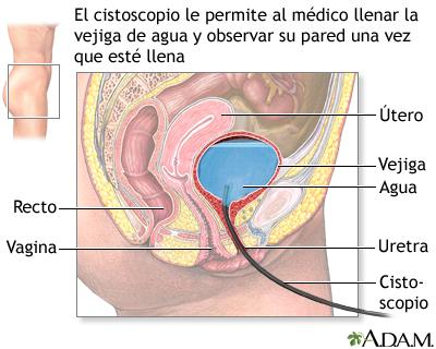 Cistoscopia