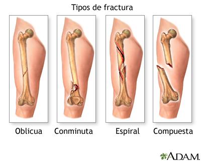 lesiones definicion: