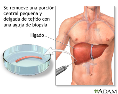 Biopsia De H Gado Medlineplus Enciclopedia M Dica