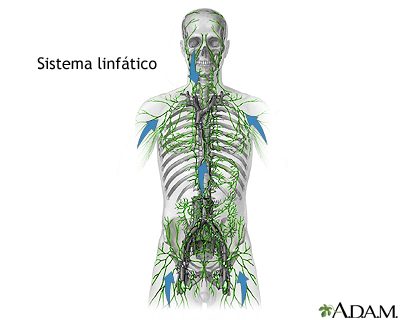 Linfoma de Hodgkin: MedlinePlus enciclopedia médica