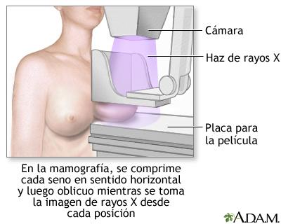 http://www.nlm.nih.gov/medlineplus/spanish/ency/images/ency/fullsize/1105.jpg