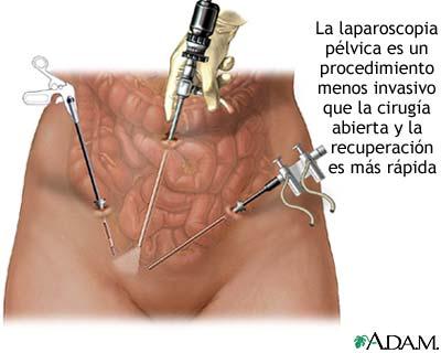 La laparoscopia pélvica
